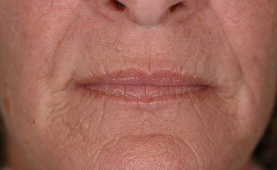 Laser Genesis at Facelogic Mt. Kisco NY