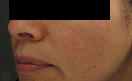 Laser Genesis After 9 Treatments