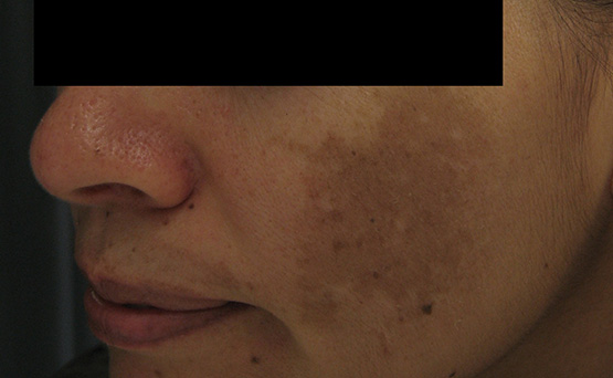 Laser Genesis Before Treatment